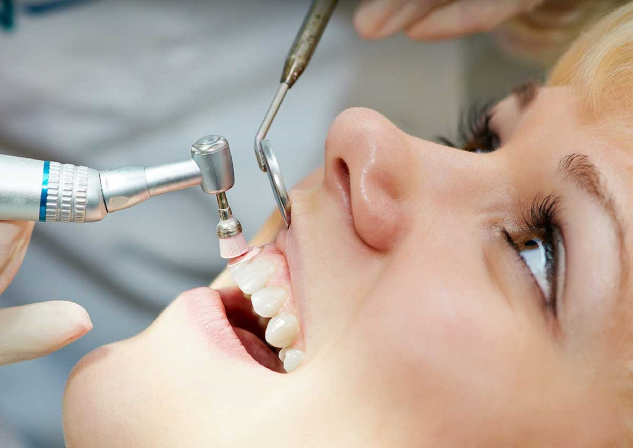 dental-patient-teeth-polishing